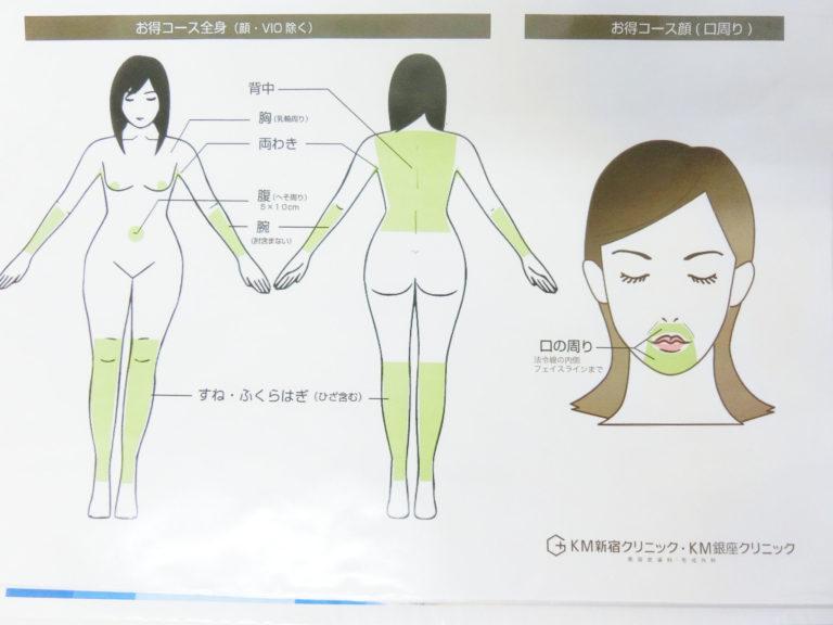 KMクリニック-お得コース全身